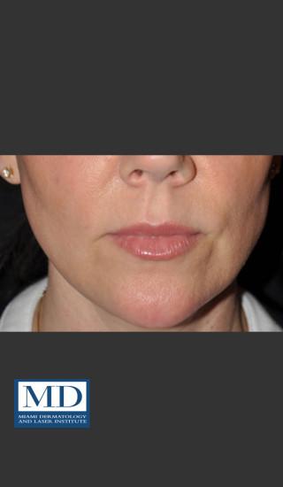 After Photo for Lip Filler 135 - Jill S. Waibel, MD - Prejuvenation