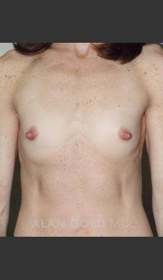 Before Photo for Breast Augmentation 592 - Alan Gold MD - Prejuvenation