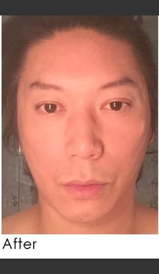 After Photo for Sculptra for Male Facial Rejuvenation - Annie Chiu, MD - Prejuvenation