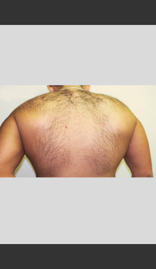 Before Photo for Gentle Laser Hair Removal -  - Prejuvenation