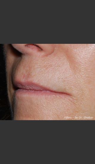 After Photo for Treatment of Perioral Wrinkles - Ron M. Shelton, M.D. - Prejuvenation
