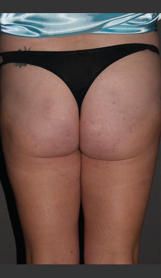 After Photo for Cellfina Case #1 - South Coast Plastic Surgery - Prejuvenation