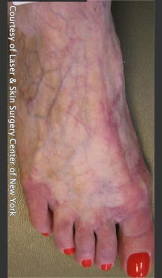 After Photo for Treatment of Foot Leg Veins -  - Prejuvenation