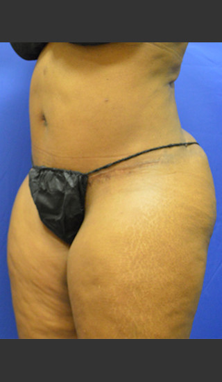 After Photo for Tummy Tuck Case #1 - Paul C. Dillon, MD - Prejuvenation