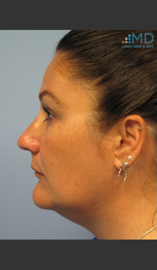 After Photo for Exilis Skin Tightening of the Lower Face - Margaret Ann Weiss - Prejuvenation