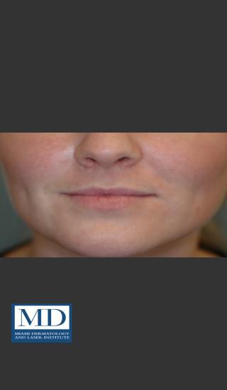 Before Photo for Lip Filler 134 - Jill S. Waibel, MD - Prejuvenation