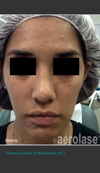 Before Photo for NeoClear by Aerolase Acne Treatment -  - Prejuvenation