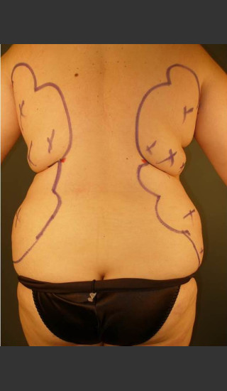 Before Photo for Liposuction #44 Back View - Dr. David Amron - Prejuvenation