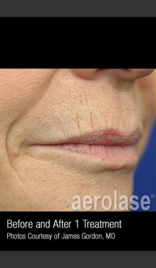 Before Photo for Treatment of Smoke Wrinkles #340 -  - Prejuvenation