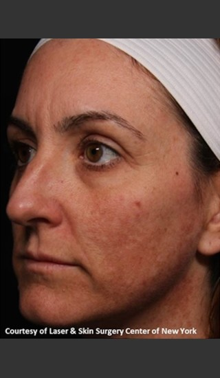 Before Photo for Full Face Rejuvenation with Fraxel Dual - Roy G. Geronemus, M.D. - Prejuvenation