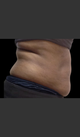 Before Photo for Body Contouring Treatment #120 -  - Prejuvenation