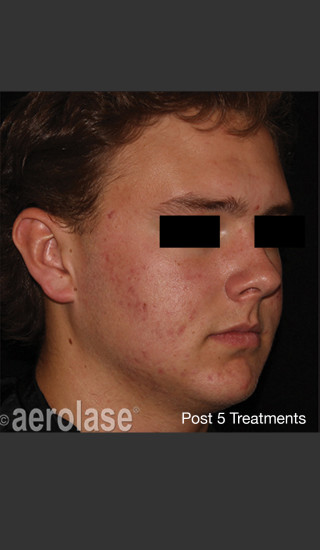 After Photo for NeoClear by Aerolase Acne Treatment - Amy Forman Taub, MD - Prejuvenation