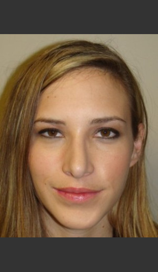 After Photo for Chin Augmentation with Rhinoplasty 6579 - Sanjay Grover MD FACS - Prejuvenation