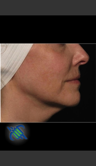 After Photo for Right Side Facial Laxity with Profound - Roy G. Geronemus, M.D. - Prejuvenation