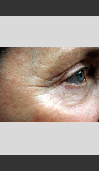 Before Photo for Vbeam Pulsed Dye Laser - Wrinkles -  - Prejuvenation