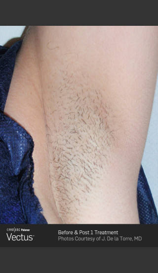 Before Photo for Hair Removal of Under Arms with Vectus -  - Prejuvenation
