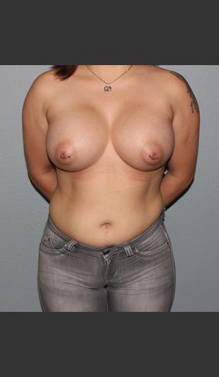After Photo for Breast Augmentation Case #1 - Bryan J. Correa, MD - Prejuvenation