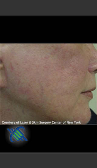 Before Photo for Facial Blood Vessels on Side of Face - Roy G. Geronemus, M.D. - Prejuvenation