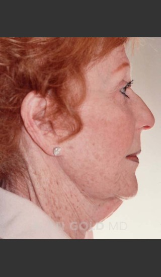 Before Photo for Rhytidectomy (Facelift) 161 Side View - Alan Gold MD - Prejuvenation