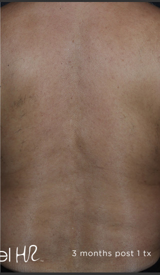 After Photo for Hair Removal of Full Back With Excel HR -  - Prejuvenation