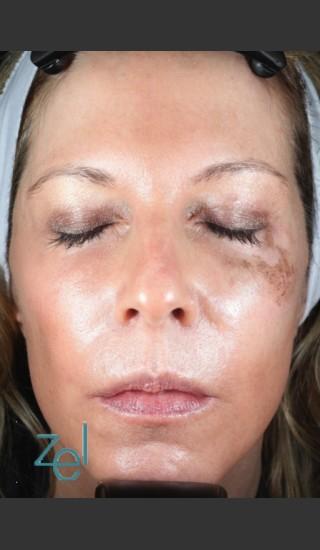 Before Photo for Treatment of Left Side Hyperpigmentation - Brian D. Zelickson, M.D. - Prejuvenation