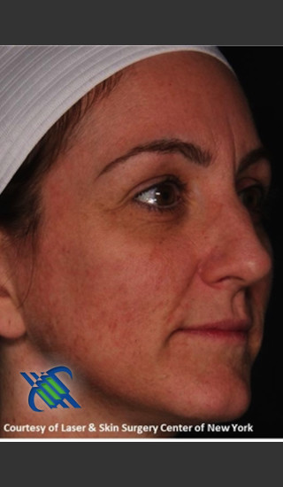 After Photo for Right Side Full Face Rejuvenation - Roy G. Geronemus, M.D. - Prejuvenation