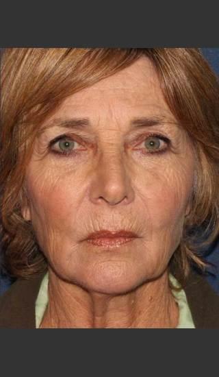 After Photo for Facial Volumization - Kimberly J. Butterwick M.D. - Prejuvenation