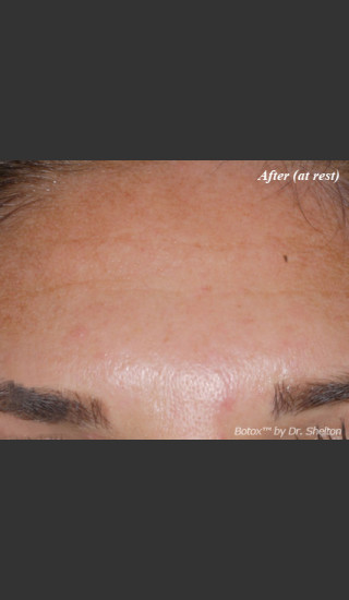After Photo for Treatment of Forehead Creases with Botox - Ron M. Shelton, M.D. - Prejuvenation