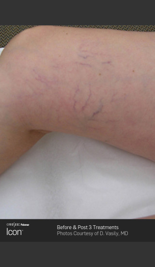 Before Photo for Leg Vein Clearance of Upper Thighs Using Icon -  - Prejuvenation