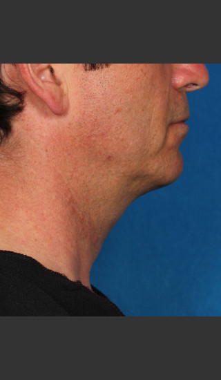 After Photo for Kybella Treatment 47 Year Old Male -  - Prejuvenation