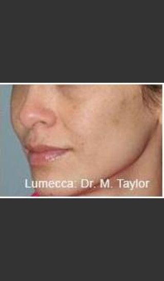 After Photo for Lumecca Intense Pulsed Light  #1 -  - Prejuvenation
