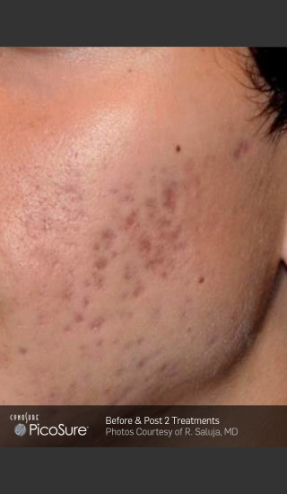 Before Photo for Acne Scar Treatment with Picosure -  - Prejuvenation