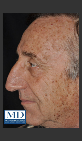 Before Photo for Brown Spots on Face Treatment 121 - Jill S. Waibel, MD - Prejuvenation
