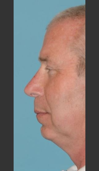 After Photo for Rhinoplasty Male Patient - Timothy Miller - Prejuvenation