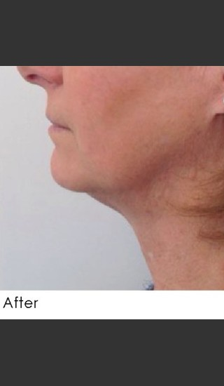 After Photo for Kybella and Filler for Jawline Definition  - Annie Chiu, MD - Prejuvenation