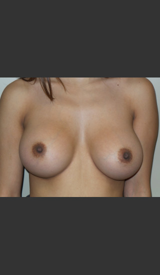 After Photo for Silicone Breast Augmentation - Sanjay Grover MD FACS - Prejuvenation