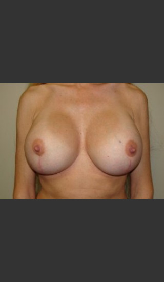 After Photo for Breast Revision 5654 - Sanjay Grover MD FACS - Prejuvenation