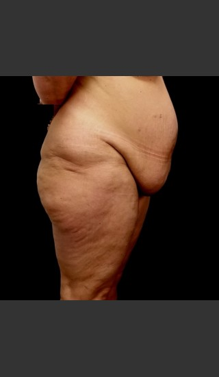Before Photo for Circumferential Body Lift Case #1 - Gallaher Plastic Surgery & Spa MD - Prejuvenation