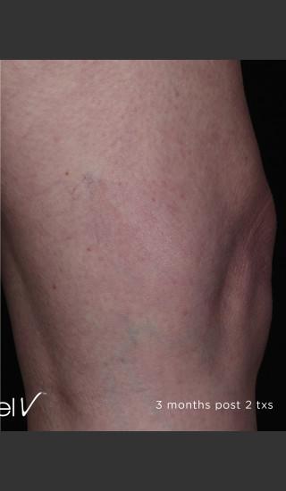 After Photo for Leg Vein Clearance Using Excel V -  - Prejuvenation