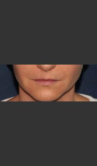 Before Photo for Lip Augmentation - Mitchel P. Goldman M.D. - Prejuvenation