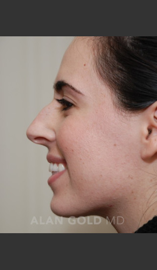 Before Photo for Rhinoplasty 1669 Side View - Alan Gold MD - Prejuvenation