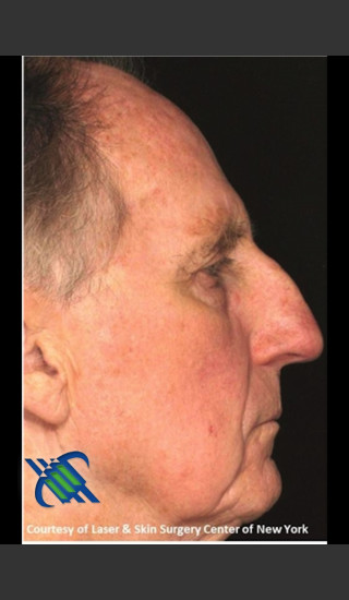 After Photo for Full Face Treatment with Fraxel Right Side  - Roy G. Geronemus, M.D. - Prejuvenation