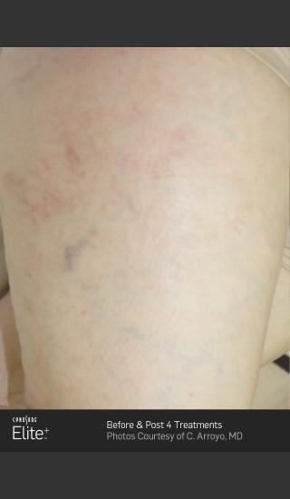 After Photo for Leg Vein Clearance Using Elite -  - Prejuvenation
