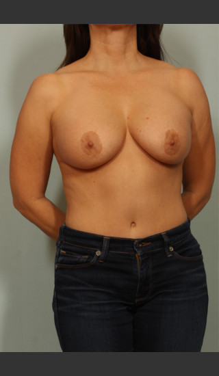 Before Photo for Breast Lift - El Paso Cosmetic Surgery - Prejuvenation