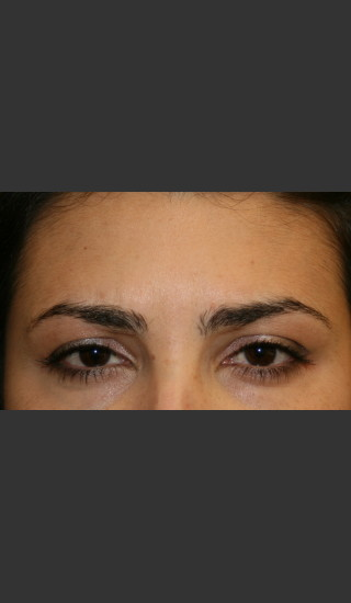 After Photo for Botox for Glabellar Lines - James Newman - Prejuvenation