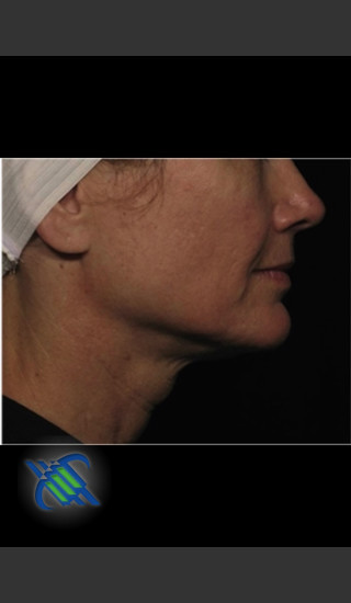After Photo for Profound Treatment of Lower Facial Laxity - Roy G. Geronemus, M.D. - Prejuvenation