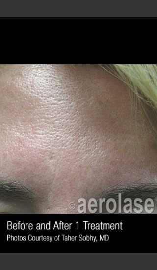 Before Photo for Treatment of Pores and Skin Texture #338 -  - Prejuvenation