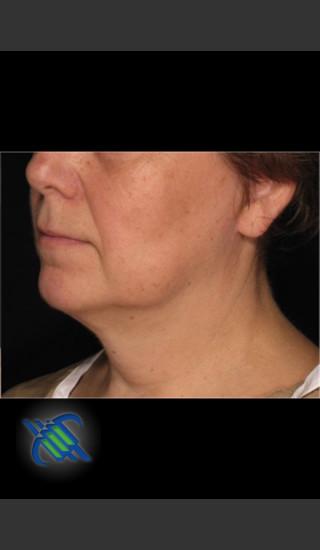 After Photo for Laser Liposuction of Lower Face - Roy G. Geronemus, M.D. - Prejuvenation