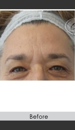 Before Photo for Dysport and Filler for Forehead Etched Lines - Annie Chiu, MD - Prejuvenation