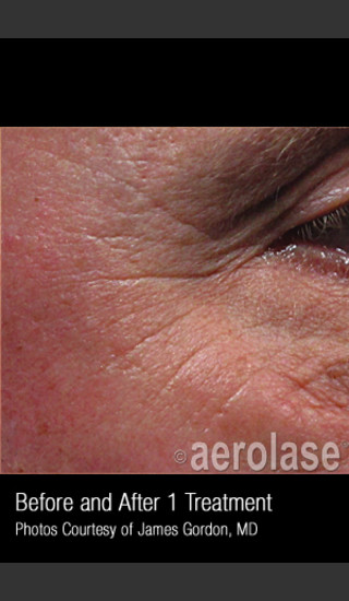 Before Photo for Treatment of Crows Feet #339 -  - Prejuvenation